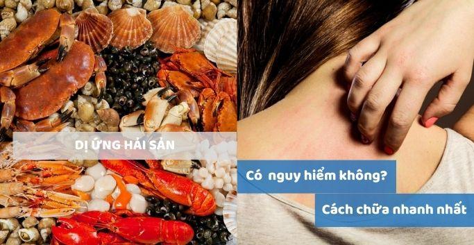10+ cách chữa dị ứng hải sản nhanh và hiệu quả nhất hiện nay